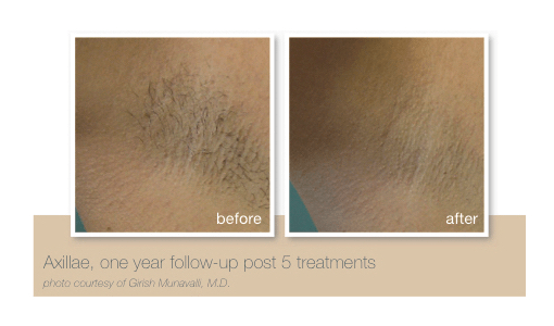 Underarm hair removal by Sheer Laser Clinic