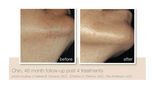 Chin hair reduction by Sheer Laser Clinic