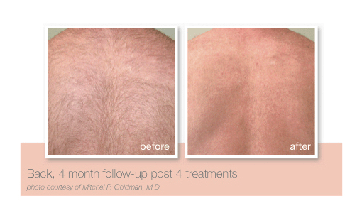 Back hair removal by Sheer Laser Clinic
