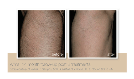 Arm hair removal by Sheer Laser Clinic