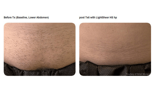 Stomach hair removal by Sheer Laser Clinic