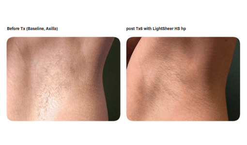 Underarm hair reduction by Sheer Laser Clinic