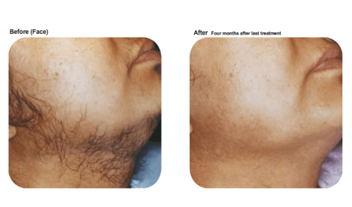 Chin hair removal by Sheer Laser Clinic