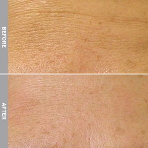 HydraFacial Before & After on Fine Line and Wrinkles