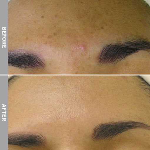 HydraFacial Before & After on Hyperpigmentation