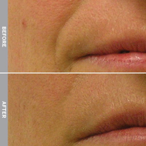 HydraFacial Before & After on Nasolabial Folds