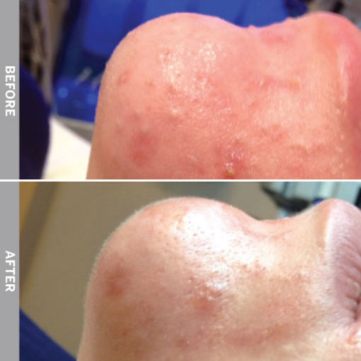 HydraFacial Before & After on Oily and Congested Skin