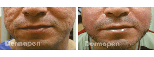 Before and after microneedling on male acne scarring