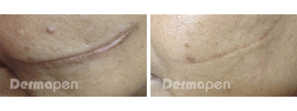 Before and after microneedling on facial scar