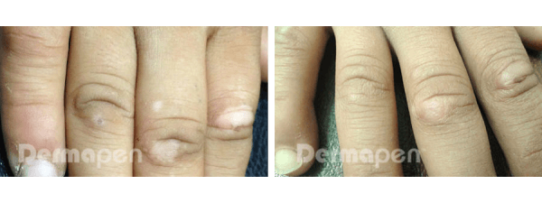 Before and after microneedling on vitiligo