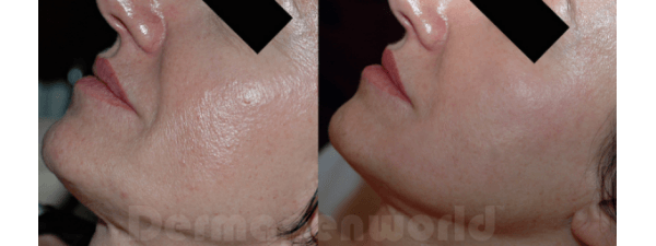 Before and after microneedling on female chin
