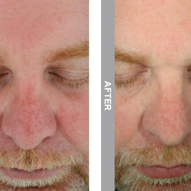 HydraFacial Before & After viewed using Polarized Imaging