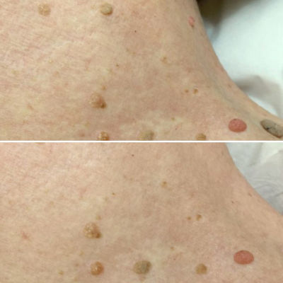 skin tag removal cryotherapy