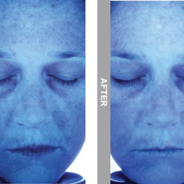 HydraFacial Before & After viewed on UV Digital Imaging